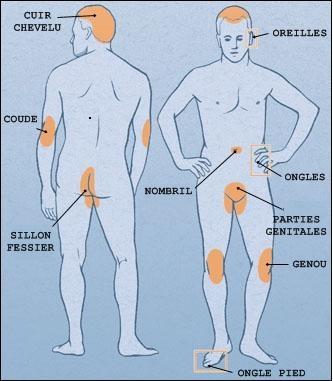 Que traiter atopitchesky la dermatite des pinceaux